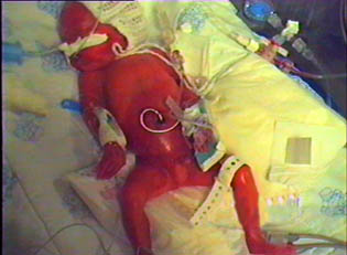 Just a few hours old in his incubator