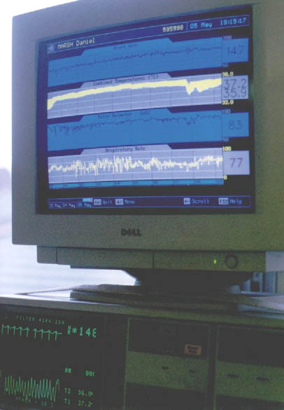 HiTech monitoring equipment